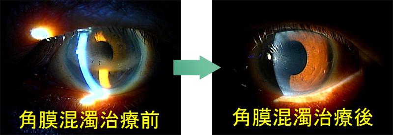 角膜の濁りを治したあとに安全な白内障手術がおこなえます