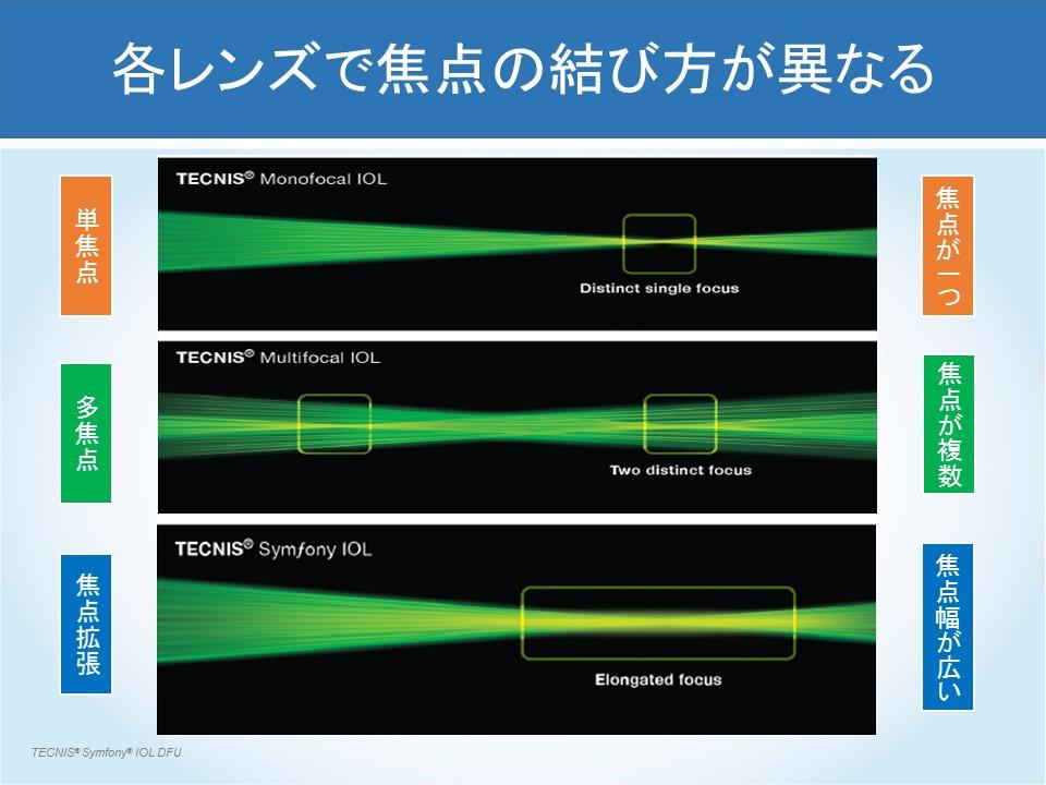各レンズで焦点の結び方が異なる
