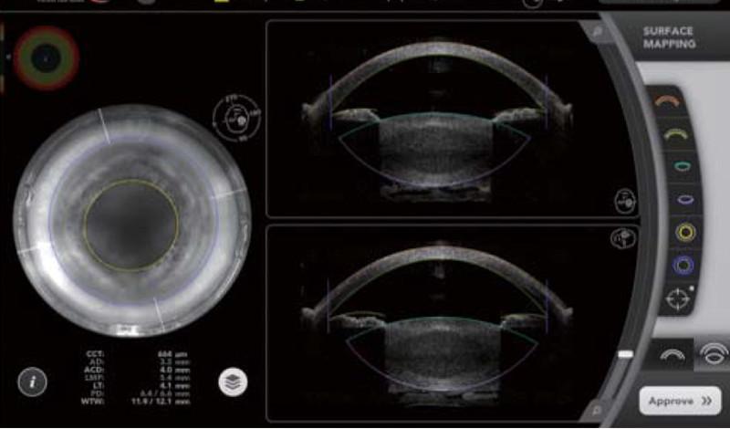 フルボリュームOCT機能が個人の眼の構造を再構築