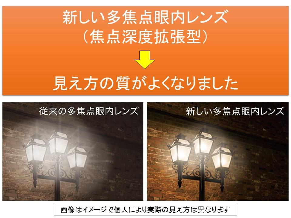 新しい多焦点眼内レンズ(焦点深度拡張型)